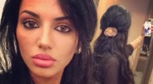 Morena Tarak është shpuar edhe në fund-shpinë