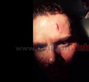 Imazhet e parë e Florit i gjakosur pas incidentit me Stinen