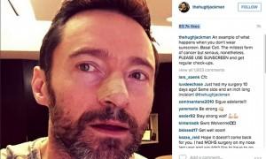 Hugh Jackman mposht kancerin për herë të pestë